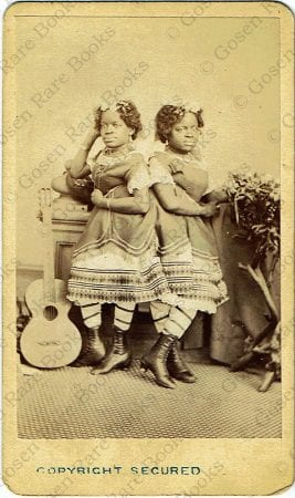 Photograph of Siamese Twins Millie-Christine McCoy